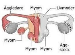 mioma1