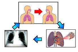 penyakit tbc2