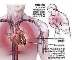 jantung koroner12
