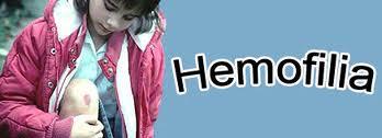 hemofilia11