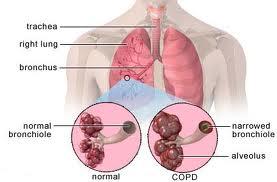 bronkitis2