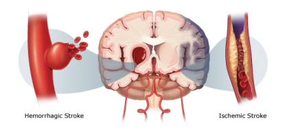 Cara Mengobati Penyakit Stroke Secara Alami