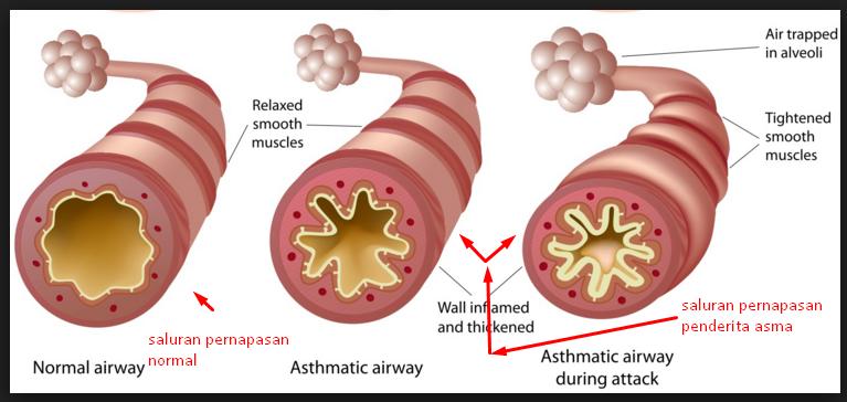 saluran pernapasan penderita asma