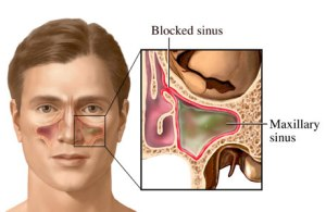Cara Mengobati Penyakit Sinusitis Paling Aman dan Alami