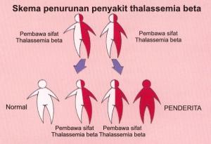 Mengobati Penyakit Thalasemia Dengan Ramuan Herbal